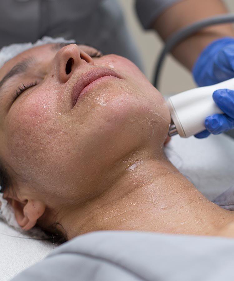 tratamientos faciales bogota mujer limpieza piel
